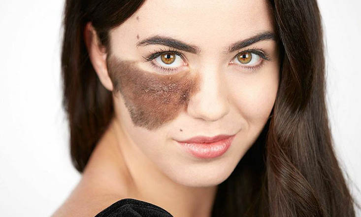 This Dancer Embraces Her Birthmark—and Says You Should Love Your Uniqueness, Too (PHOTOS)