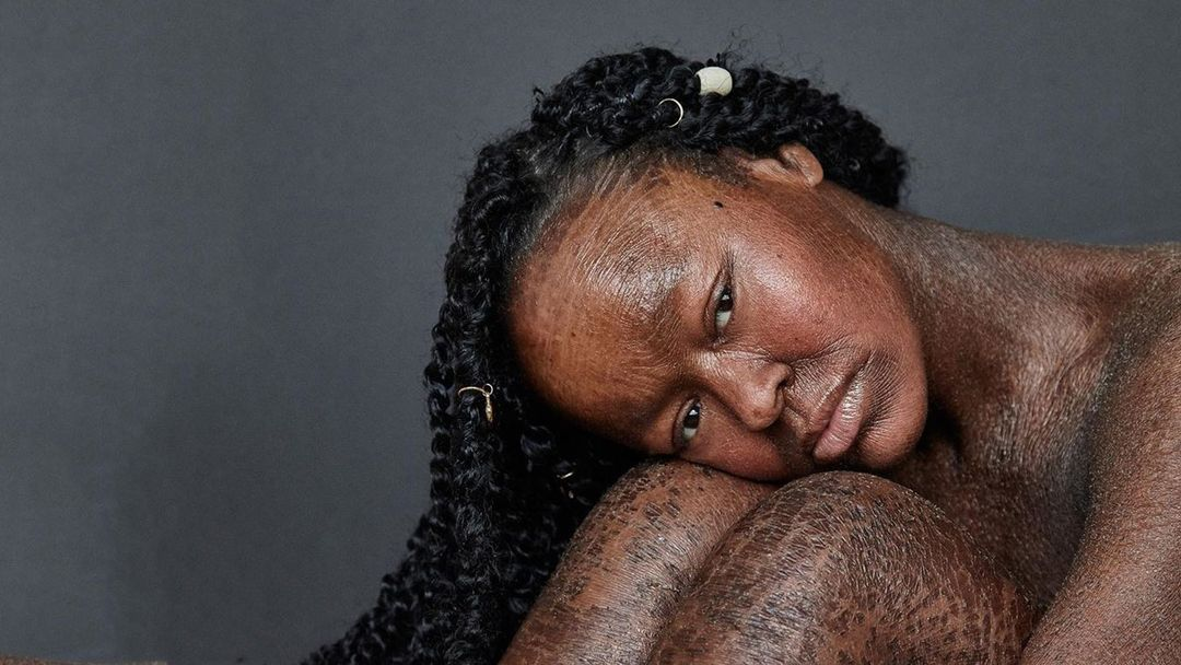 This Model With a Rare Skin Condition Shows How 'Different is Beautiful' #DOYOU